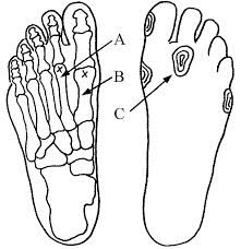 Morton's foot